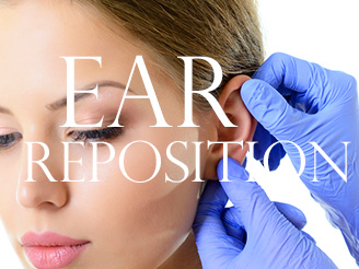 Ear Reposition